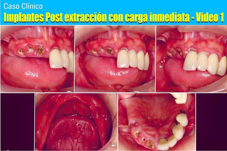 Implantes-Post-extracción