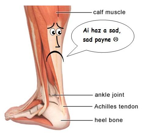 achilles tendon HURTS