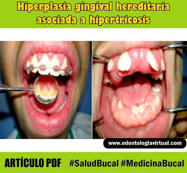 hiperplasia-gingival