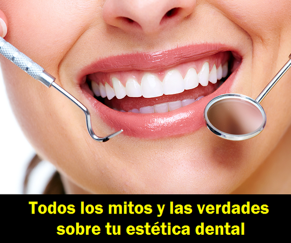 estetica_dental
