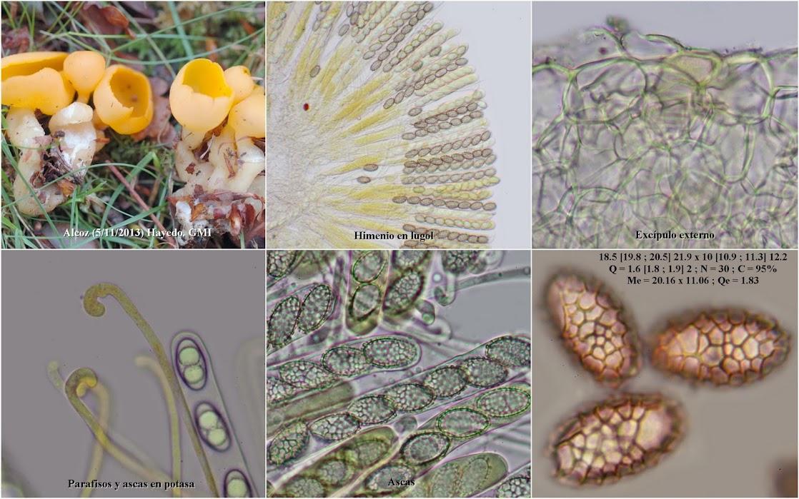 Microscopía de hongos de Navarra
