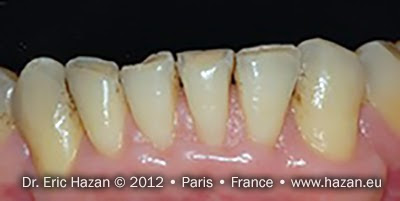 Avant / before - Cas de réalisation de facettes de céramique / dental veneers. Docteur Eric Hazan, chirurgien-dentiste / dental surgeon, Paris 16, France