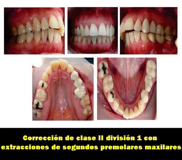 Pdf correcci n de clase ii divisi n 1 con extracciones de for W de porter ortodoncia