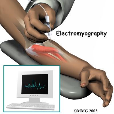 Đo điện cơ chẩn đoán chính xác hội chứng ống cổ tay và giúp loại trừ những bệnh lý khác