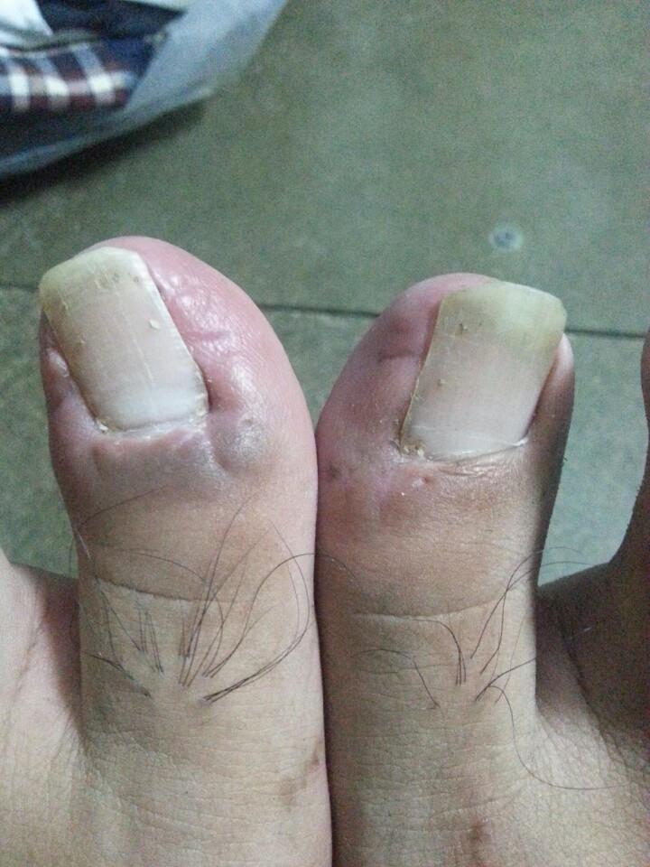 Móng chân hiện tại của bệnh nân đã đang dẫn trở lại bình thường