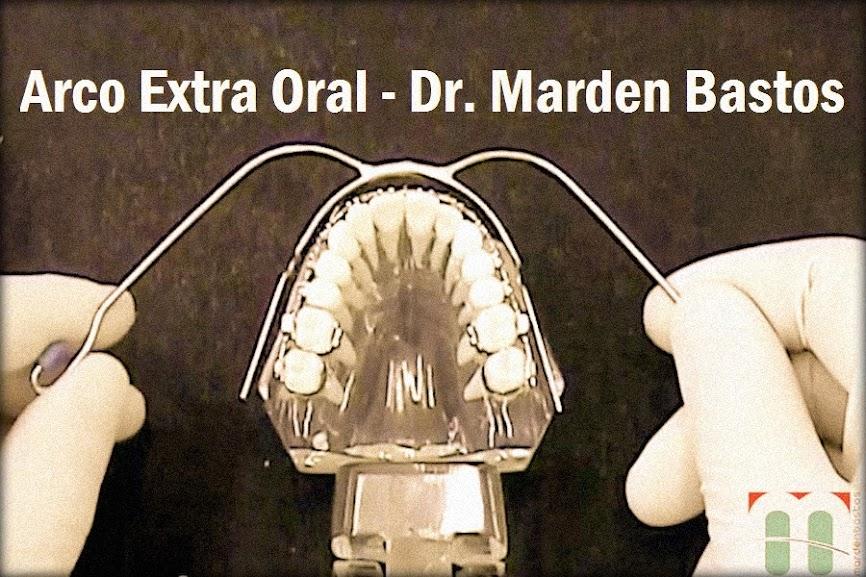 arco-extra-oral