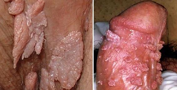 Hình ảnh đặc trực của sùi mào gà ở cơ quan sinh dục