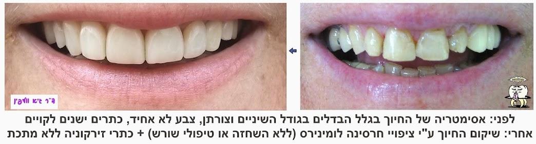 smile.design.zirconia.lumineers.volfin  זירקוניה חרסינה אסתטיקה שיניים חיוך הלבנה ציפויים דנטלית וולפין