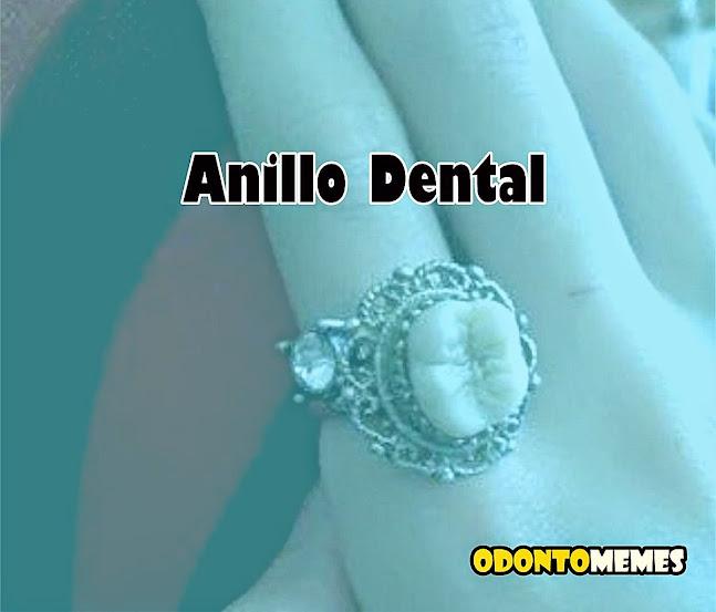 anillo-dental