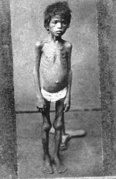 Uma criança magra pela fome que fora causa pela grande seca.