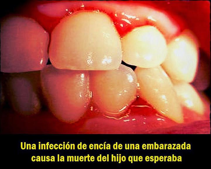 bacterias-orales