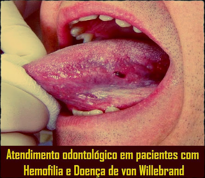 Hemofilia-von-Willebrand
