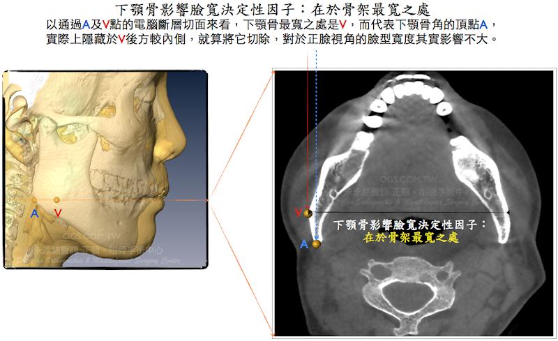 韓式微創削骨,削骨手術,下顎骨雕塑,下巴
