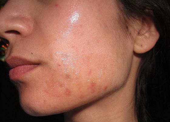 plekjes op huid