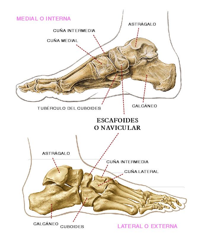 ESPACIO, AMOR Y LOCURA: Fracturas del Navicular (Escafoides del pie ...