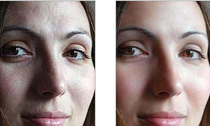 soft skin action