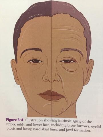 aging skin, sagging face,Filler, ฟิลเลอร์,คอลลาเจน,หย่อนคล้อย