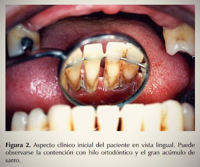 ferulizacion-periodoncia