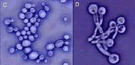 [Image: Candida_growing_hyphae_negative2.jpg]