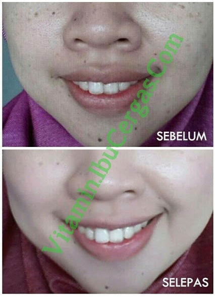 Shaklee Collagen Powder Collagen Powder Shaklee Collagen Powder - Kenapa Saya Paling Yakin? Collagen 2520Powder 25202