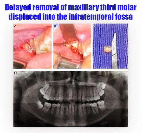 third-molar