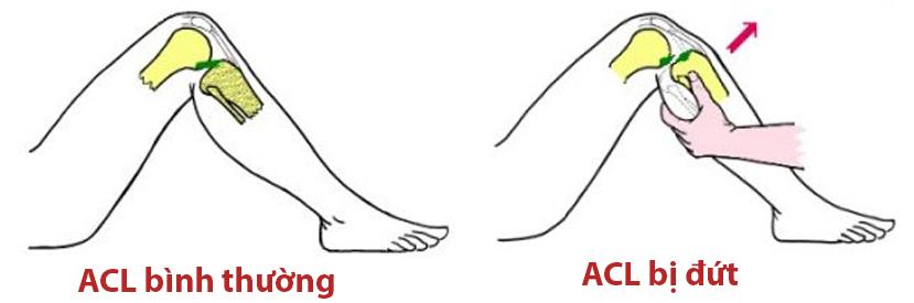 Minh hoạ dây chằng chéo trước bình thường và khi bị đứt