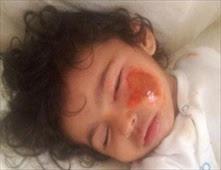 خادمة تحرق وجه طفل بمكواة الملابس