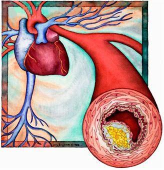 herbal hiper kolesterol