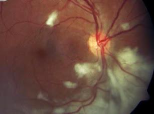 Obat Herbal Toksoplasma Pada Mata