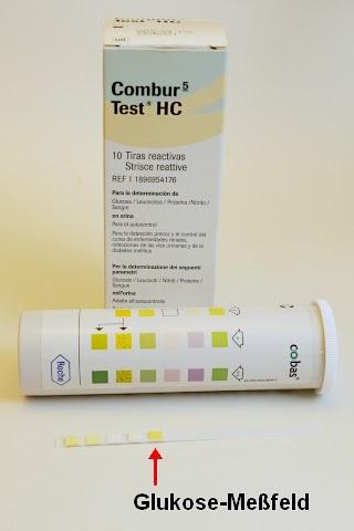 Urintest bei Diabetes: Dunkelgrün bedeutet: zu viel Zucker | diabetes.moglebaum.com