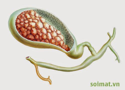 Viêm túi mật cấp có thể diễn tiến đến tắc mật và nhiễm trùng