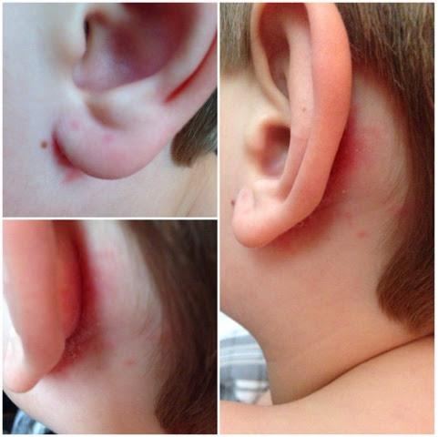 prickar bakom öronen