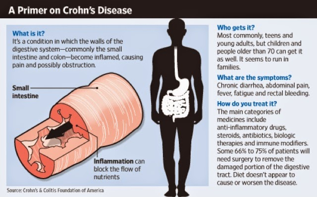 the causes and main features of crohns disease