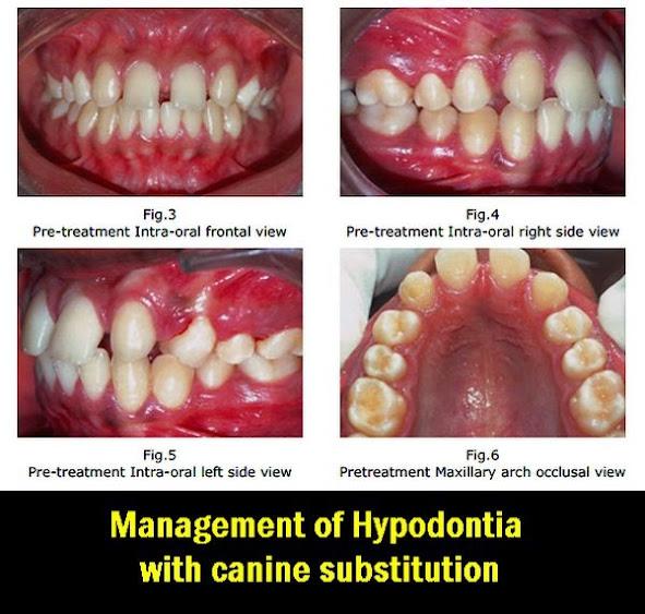 hypodontia
