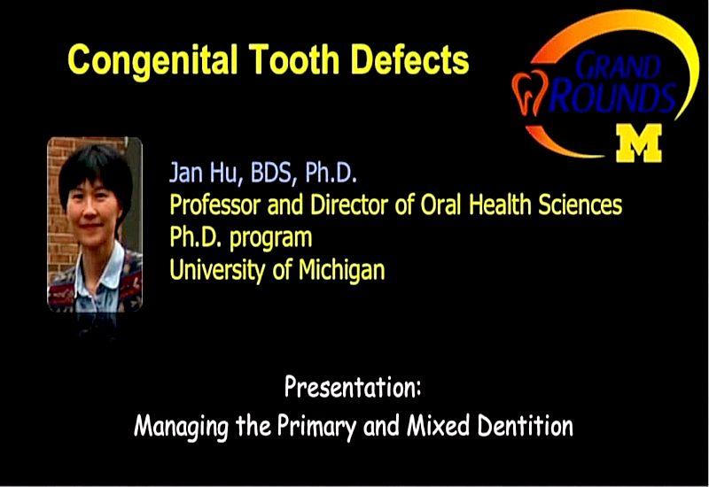 Mixed-Dentition