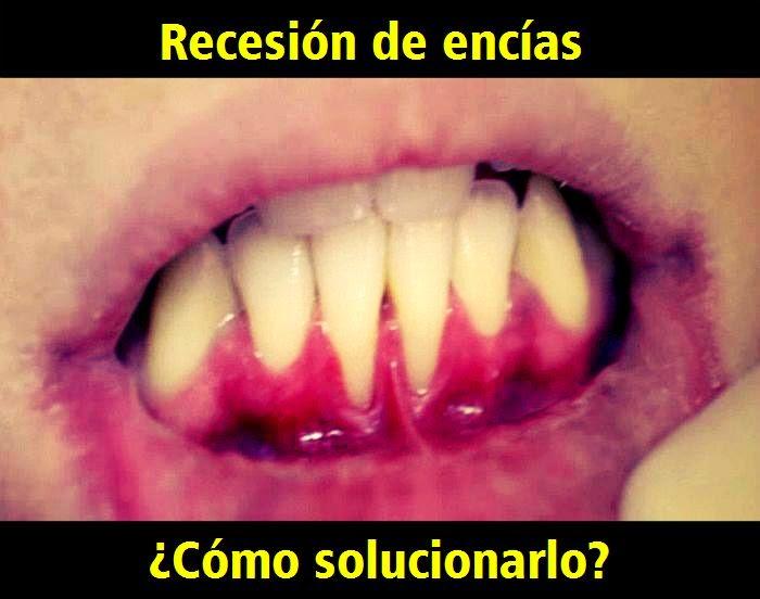 recesion-encias