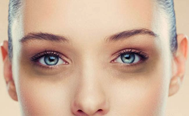Natural remedy for removing dark circles