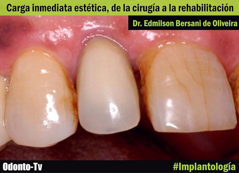 carga-inmediata-implantologia