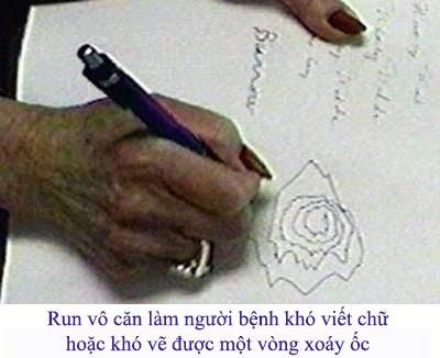 trieu-chung-run-vo-can