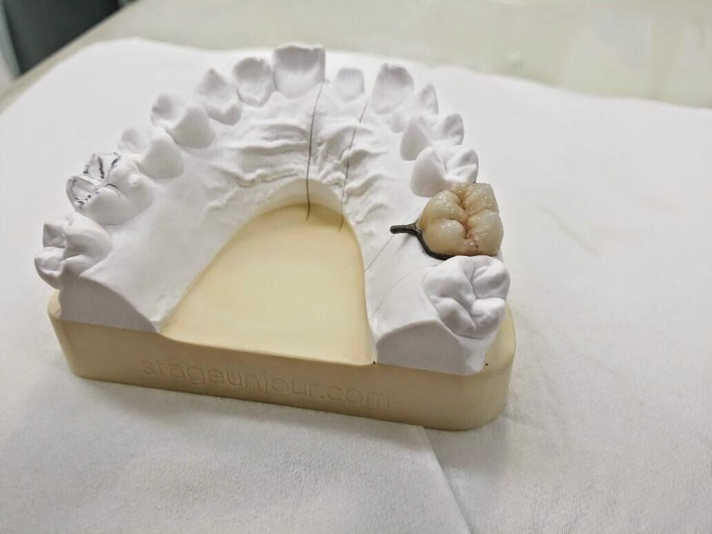 مركز الأسنان بريدة يقيم دورة IMG-20141016-WA0060.jpg