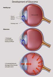 Vitamin Mata Penderita Glaukoma