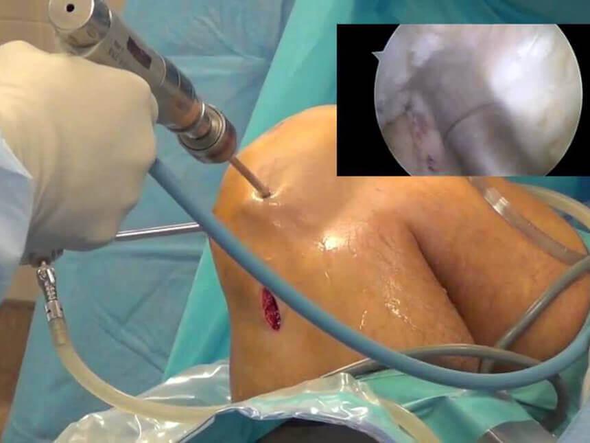 Chi phí phẫu thuật nội soi tái tạo dây chằng chéo là bao nhiêu?