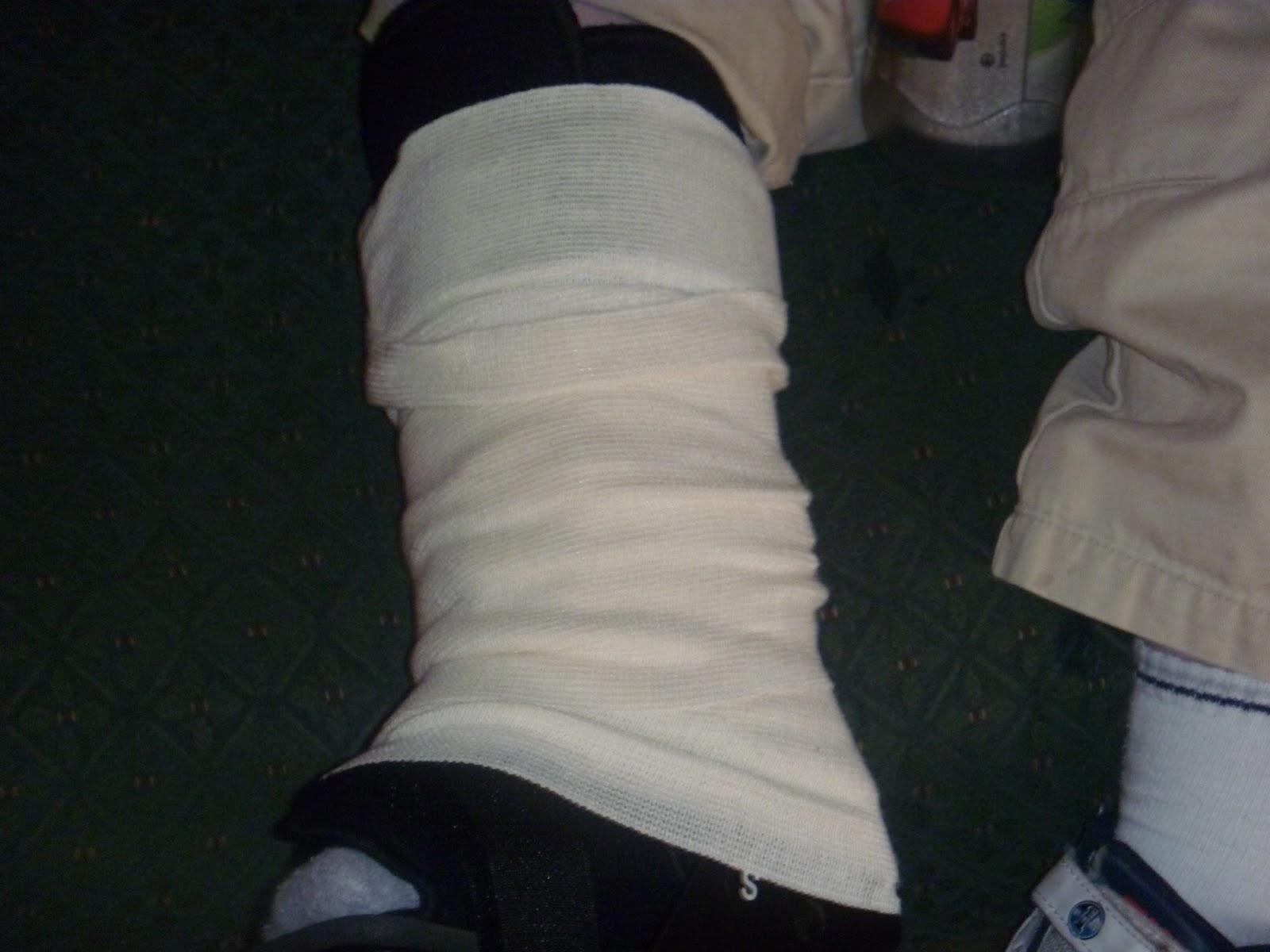 Broken Leg Story Endless Strength
