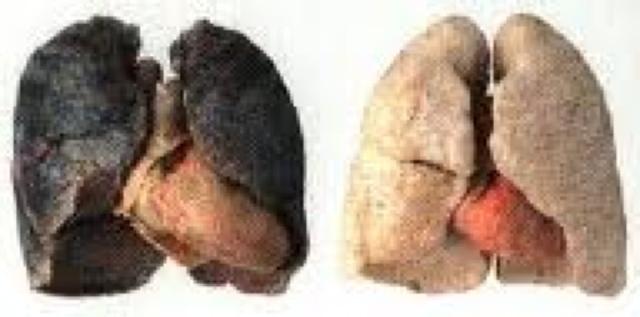 Keuhkot Tupakoinnin Lopettamisen Jälkeen