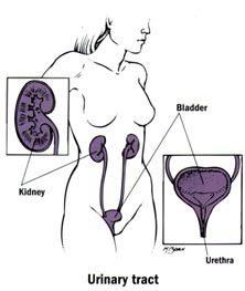 Infeksi Saluran Kencing Lebih Banyak Menyerang Kaum Perempuan