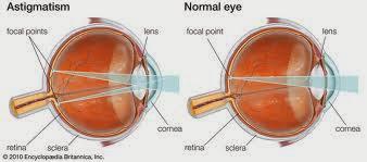 Vitamin Untuk Mata Silinder