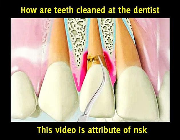 teeth-cleaned