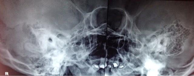Ray mastoid air cells rt side x rays shows hazy mastoid air cells