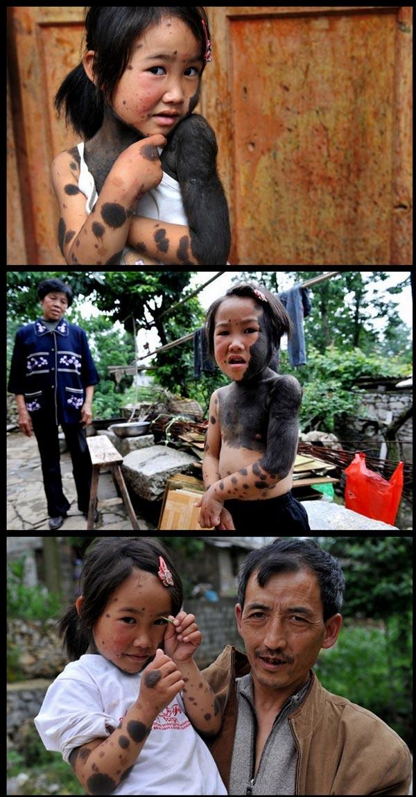 BLOG USANG: [ sedih ] Gadis Serigala Jadian Ditinggal Ibubapa (9 ...