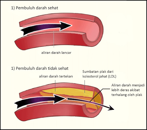 kolesterol pada hipertensi